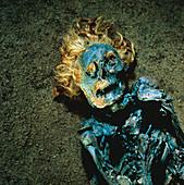 Mummified head and torso of Neu Versen Man