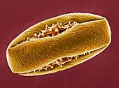 Horse chestnut pollen,SEM