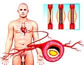 Angioplasty,artwork