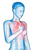 Human heart attack,illustration