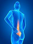 Human back pain,illustration