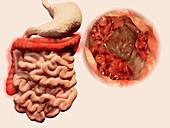 Colon cancer,illustration