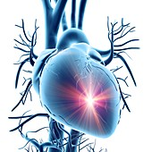 Heart attack,conceptual artwork