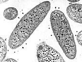 TEM of E. coli infected by T4 bacteriophages