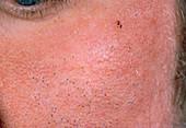 Acne vulgaris: blackheads on a man's face