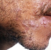 Acne vulgaris: pustules on man's face
