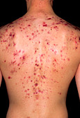 Acne vulgaris on the back of a young man