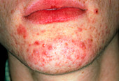 Acne on chin