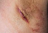 Armpit abscess