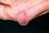 Rheumatoid arthritis nodule