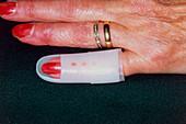 Splint on arthritic finger