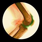 Arthritis of the knee,X-ray
