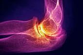Arthritic elbow,X-ray