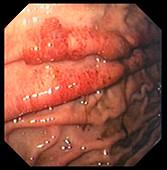 Gastritis in AIDS