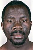 AIDS man with dermatitis