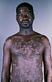Psoriasis in AIDS patient