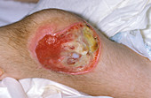 Non-healing wound in AIDS