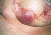 Recurrent breast cancer