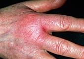 Cellulitis on hand