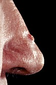 Basal cell carcinoma on a 60 year old man's nose