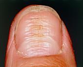 Horizontal ridges on fingernail or nail dystrophy