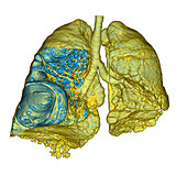 Emphysema of the lungs,CT scan