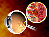 Illustration of macular degeneration