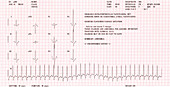 Heart disease ECG