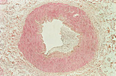 LM of a section through atheroma in an artery