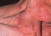 Carotid aneurysm