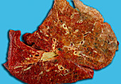 Atheroma of vessels of the lung