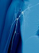 Takayasu's arteritis,angiogram