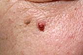 Seborrhoeic wart on cheek