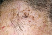 Follow-up to seborrhoeic wart treatment