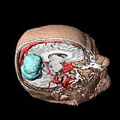 Brain tumour,3D scan