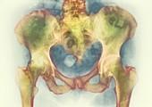 Bone death,X-ray