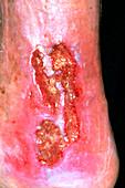 Venous ulcer on leg