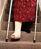 Woman's legs,one broken,using staircase