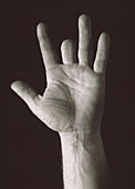 Missing middle finger