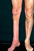 Leg muscle wasting