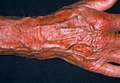 Deformed arm after fracture