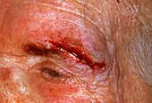 Cut on face