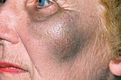 Bruise on cheek