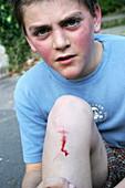Cut knee