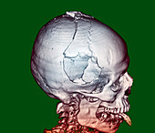 Fractured skull,CT scan