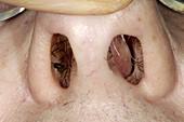 Abnormal septum