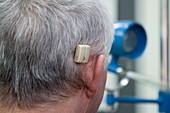 Baha hearing system