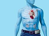 Artificial heart,artwork