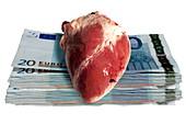 Heart transplant sale