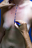 Cosmetic breast and abdominal surgery